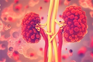 Impact of COVID-19 On Kidney Patients